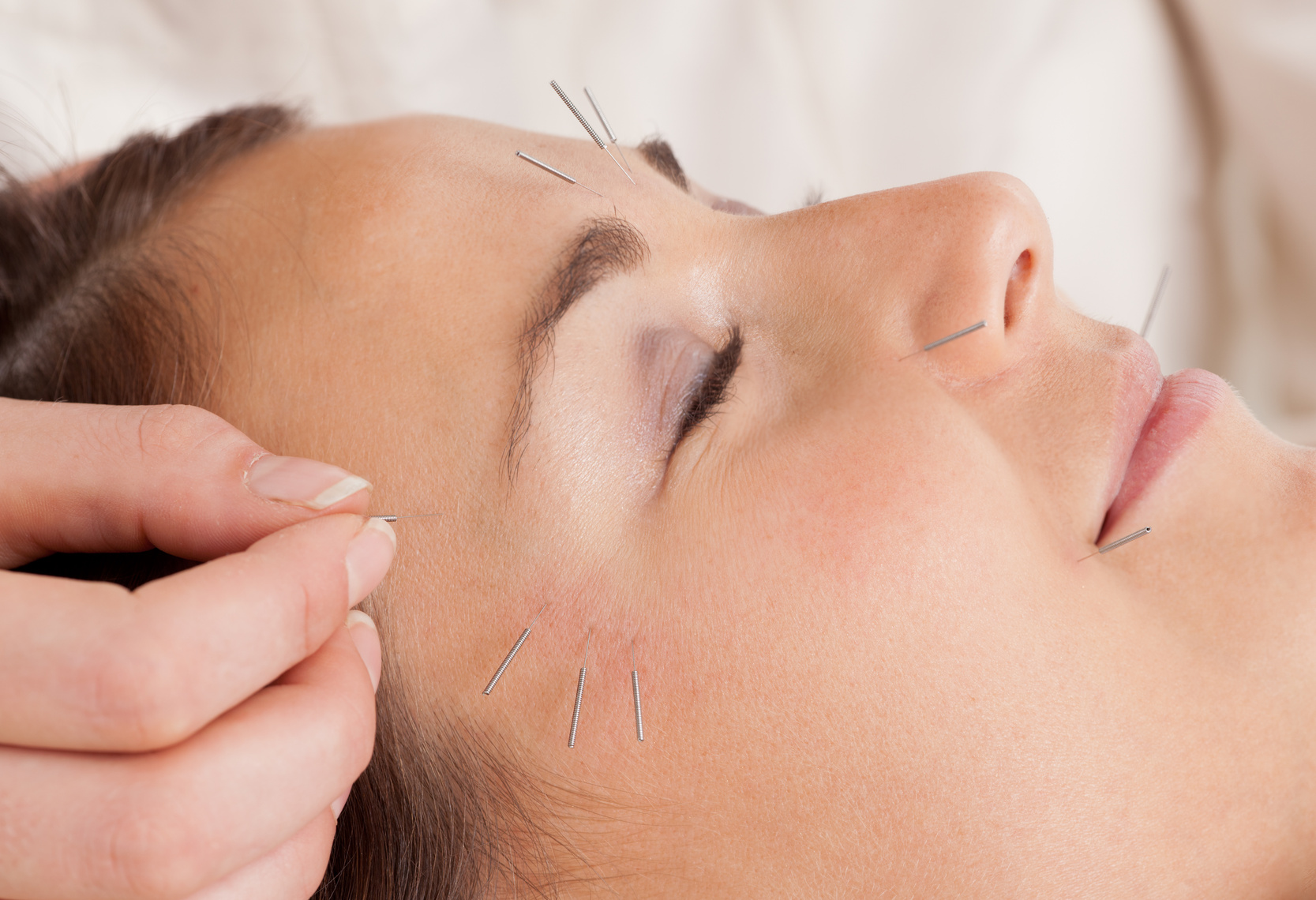 Acupuncture can help you live without that pain